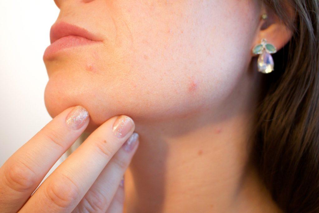 Acne Is Caused By Bacteria In Skin | Skinn Bar